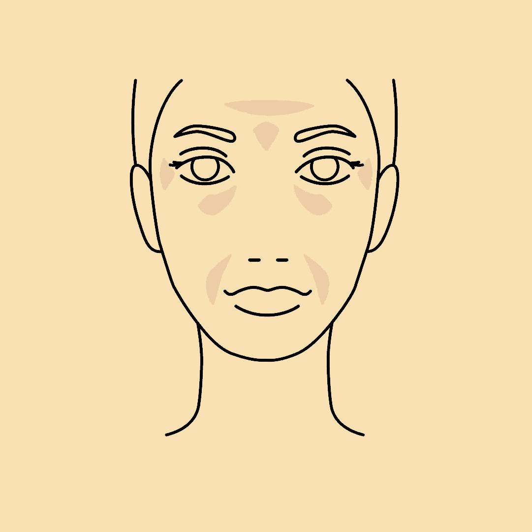 Mit Hyaluron-Filler können die Gesichtszüge modelliert und die Fältchen reduziert werden.